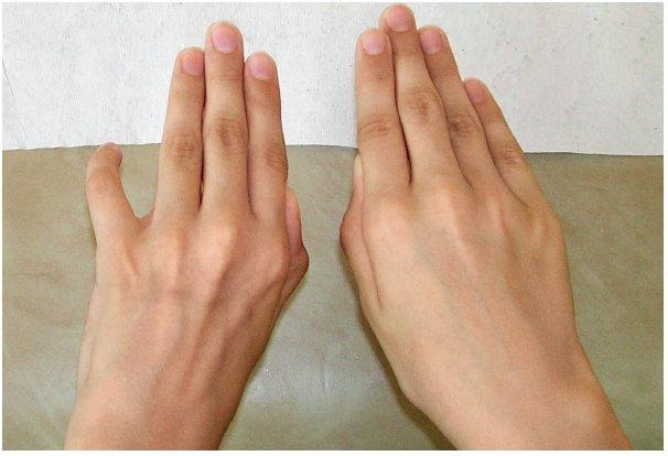 Osmiletý chlapec po pořezání střední části levé paže o skleněnou výplň dveří. Provedena mikrosutura kompletně přeťatého n. ulnaris a parciálně poraněného n. cutaneus antebrachii medialis. Za 2 roky od poranění došlo k velmi dobré regeneraci n. ulnaris klinicky i dle EMG, včetně jemné motoriky ruky. Přetrvávaly lehčí hypotrofie interoseálních prostor a oslabení dukcí prstů, dominantně pro malík, který zůstával v abdukčním a semiflekčním postavení.