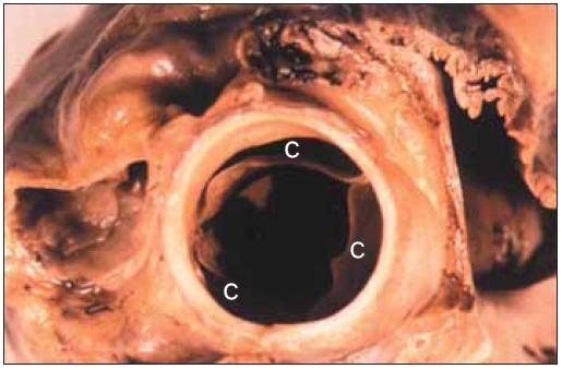 Plně otevřená normální aortální chlopeň.