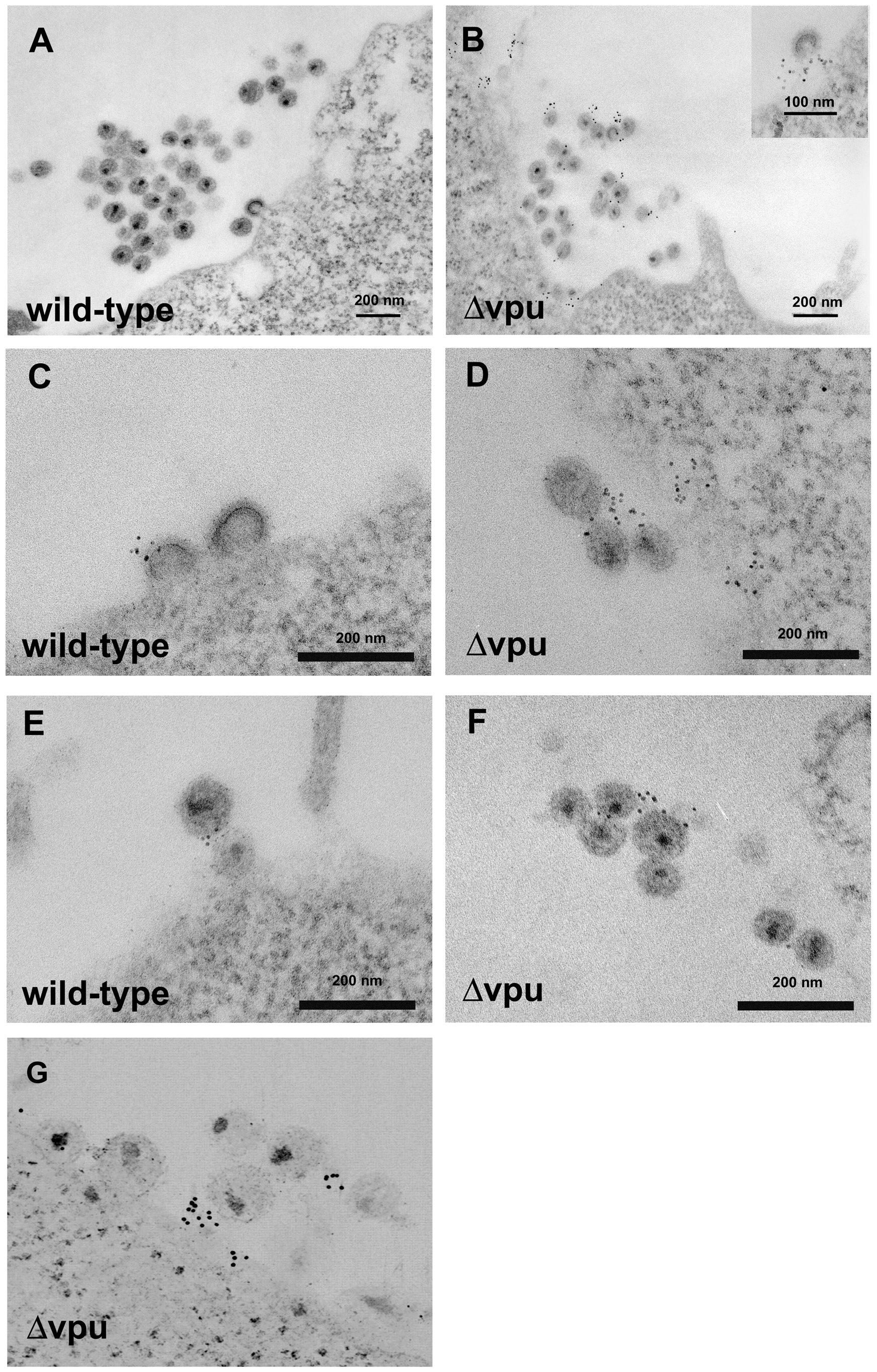 Electron microscopic evidence of direct virion tethering and virion-incorporation of BST-2.