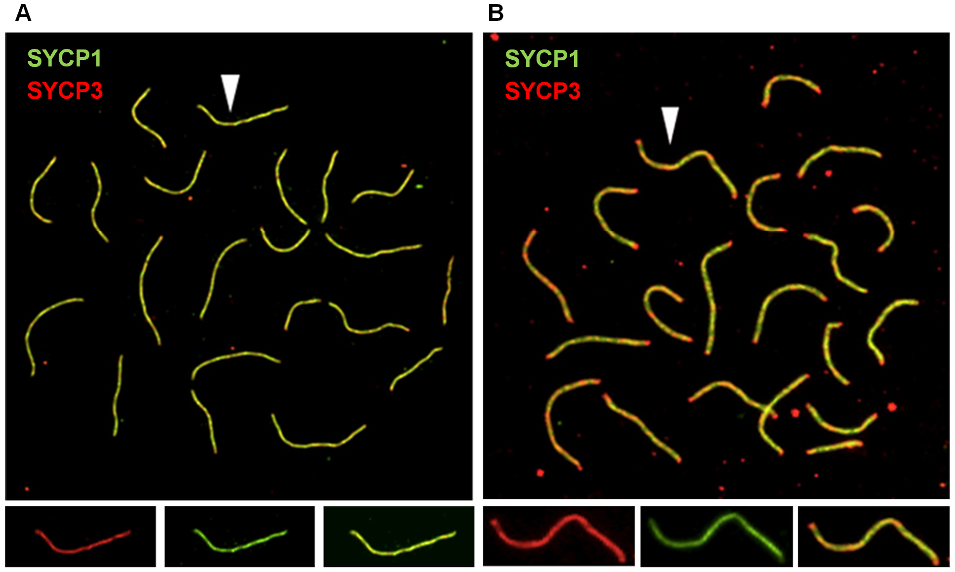 Synaptonemal complex formation is disturbed in cohesin heterozygotes.