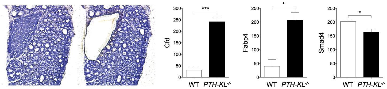 Parathyroid transcriptional data.