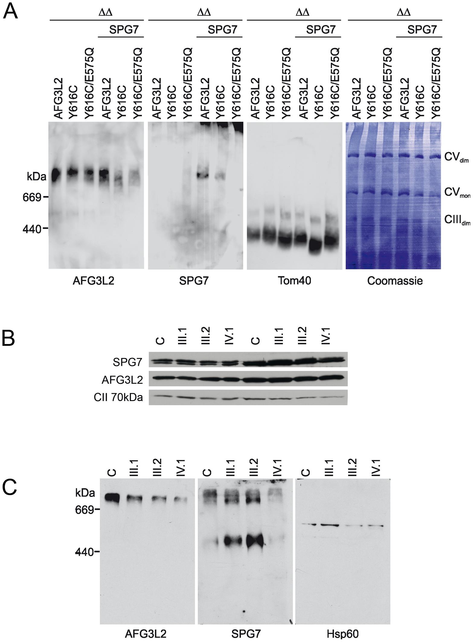 Assembly of AFG3L2, AFG3L2<sup>Y616C</sup>, and AFG3L2<sup>Y616C/E575Q</sup> in mitochondria.