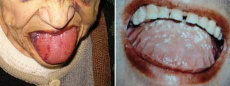Obr. 6 a 7. Na jazyku můžeme u AL-amyloidózy někdy vidět krvácivé projevy, jindy dochází ke zbytnění jazyka na základně depozit amyloidu ve tkáni jazyka. Otisky zubů na krajích  jazyka jsou typickou známkou makroglosie. V diferenciální diagnostice makroglosie připadá v úvahu akromegalie nebo AL-amyloidóza.