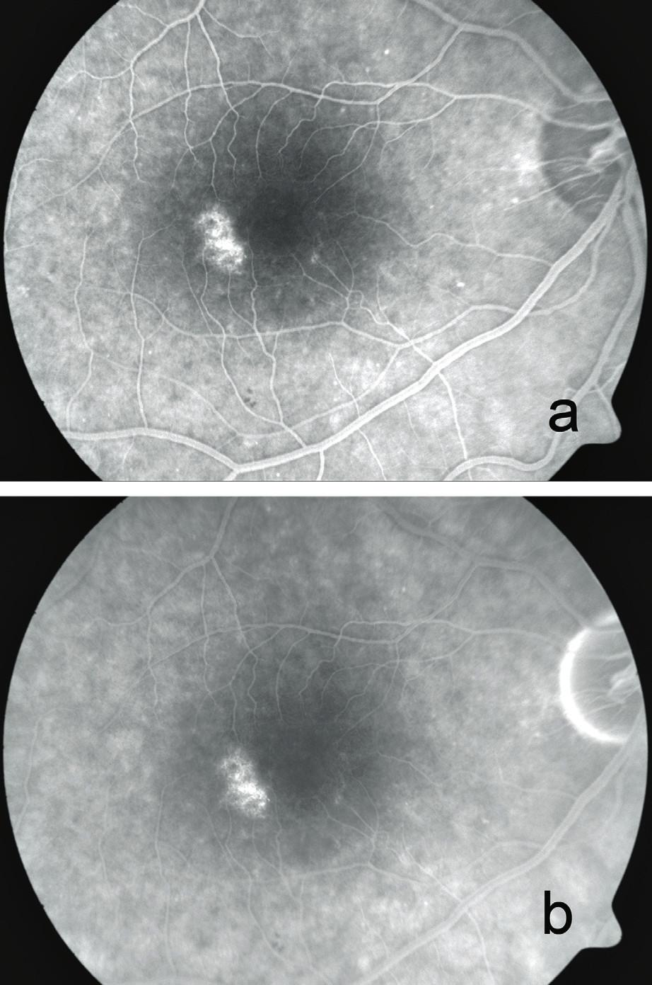"""Fluorescenční angiografie s mírnou poruchou pigmentace okolo centra a ložiskovým """"window"""" defektem v makule pravého oka a) ve 42. vteřině, b) v 7. minutě"""