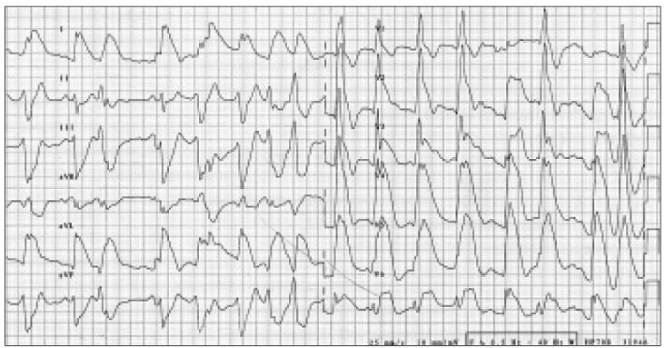 Elevace ST úseků I, aVL, V<sub>2–6</sub> na vstupním EKG.