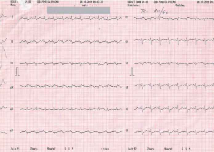 EKG záznam pri urgentnom vyšetrení v porovnaní so záznamom z dokumentácie – sínusová tachykardia, kmit S v I, Q v III, inkompletný blok pravého Tawarovho ramienka.