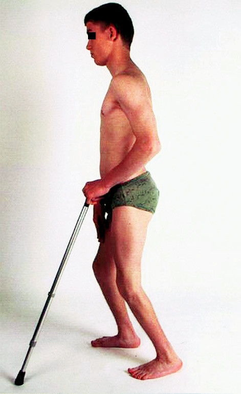 Obr. 6a. Stav po výkonu na svalech, flexe kolen při patela alta.