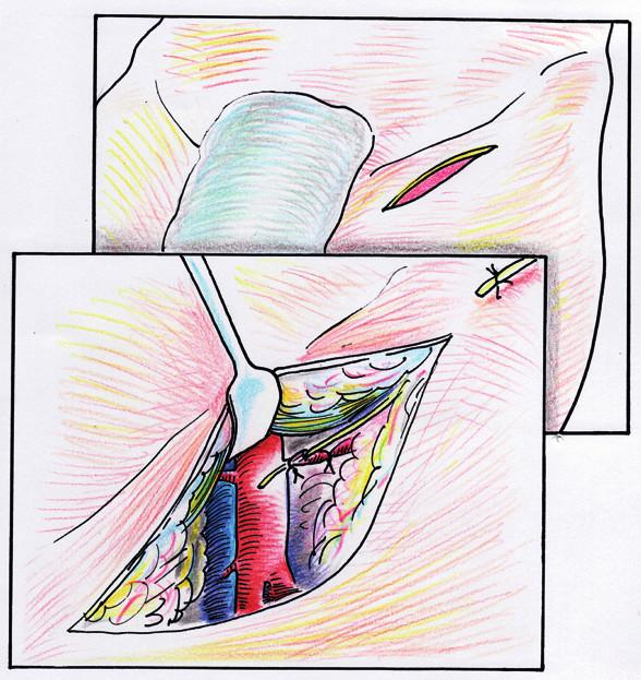 Znázornění zavedení tenké cévky do a. femoralis communis přes a. circumflexa ilium profunda při dlouhodobé nitrotepenné infuzi