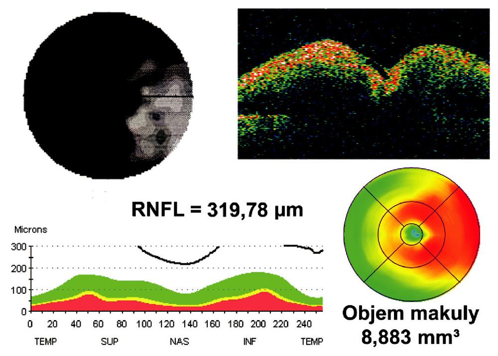 Masivní edém papily zrakového nervu zasahující až do makulární oblasti v akutní fázi AION