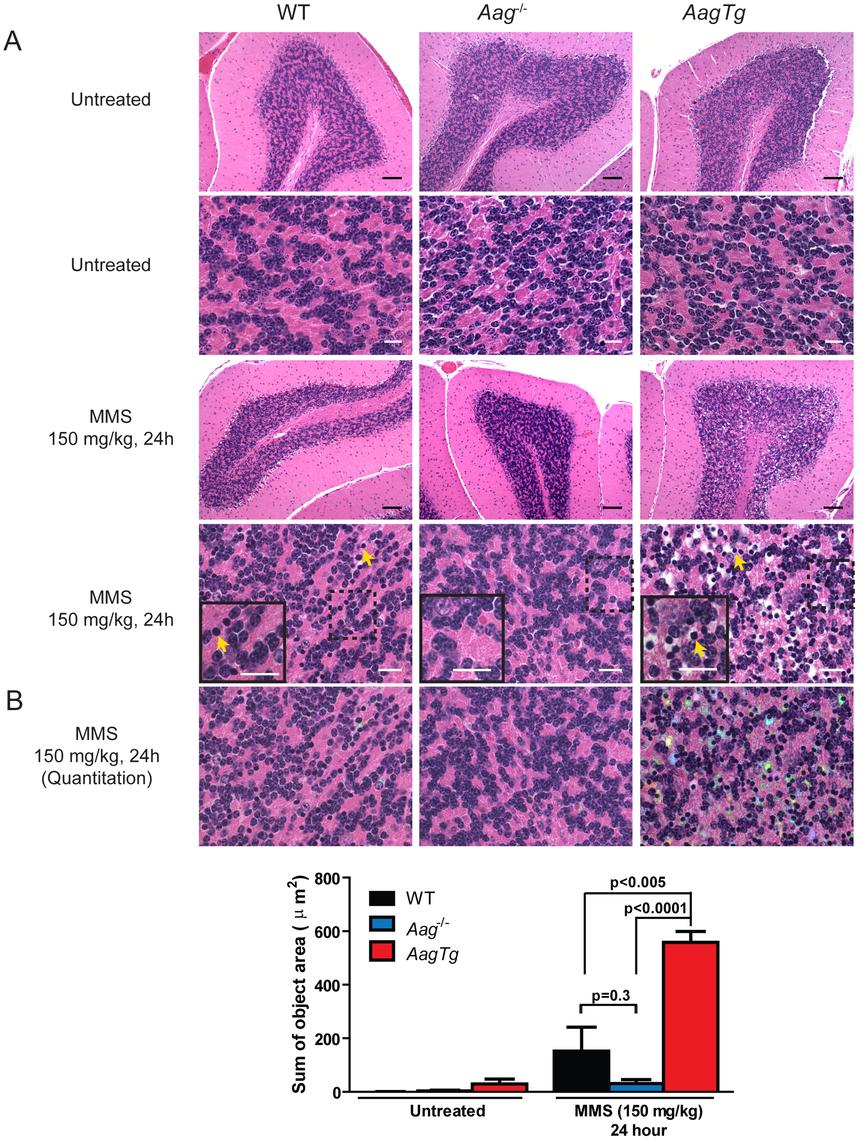 MMS induces severe cerebellar lesions <i>AagTg</i> mice.