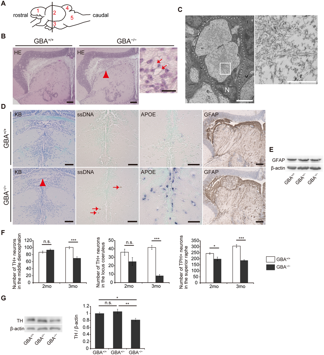 Pathological analyses of <i>GBA</i><sup>-/-</sup> medaka.