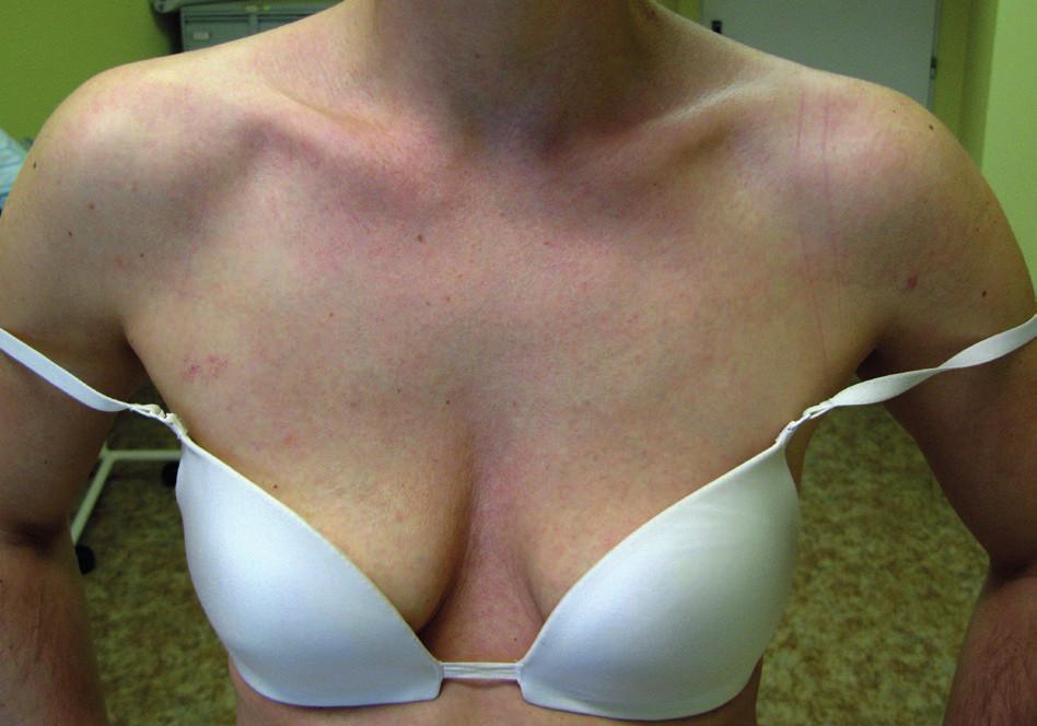 Plocha svraštělé kůže postihující celý výstřih a horní partie hrudníku