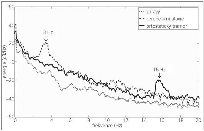 Křivky frekvenční analýzy CoP u zdravého, pacienta s cerebelární ataxií a pacienta s ortostatickým tremorem.