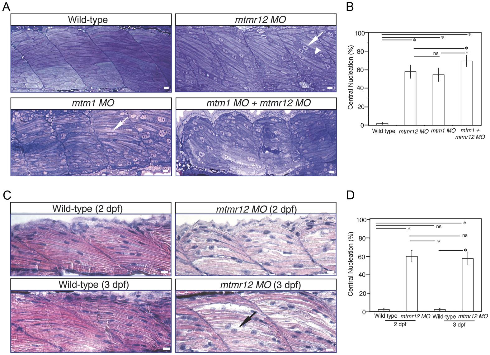 Abnormal histology of MTMR12-deficient zebrafish.