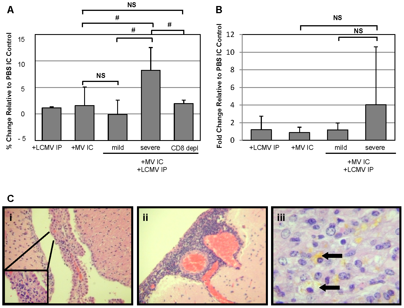 Edema, but not blood brain barrier, changes correlate with pathogenesis in co-infected mice and is dependent on CD8<sup>+</sup> T cells.