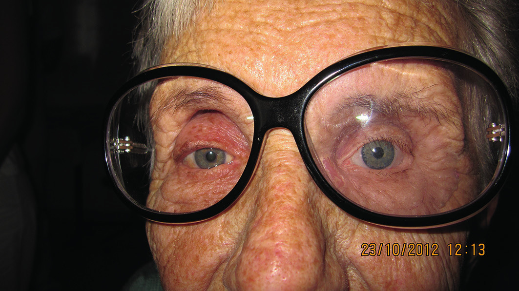 Fotografia pacientky po nasadení epitézy a okuliarov