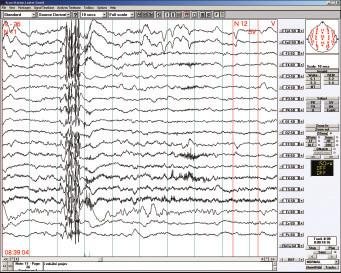 Bdělé EEG u 16letého chlapce s juvenilní myoklonickou epilepsií. Polyspike-wave komplex na normálním pozadí EEG záznamu.