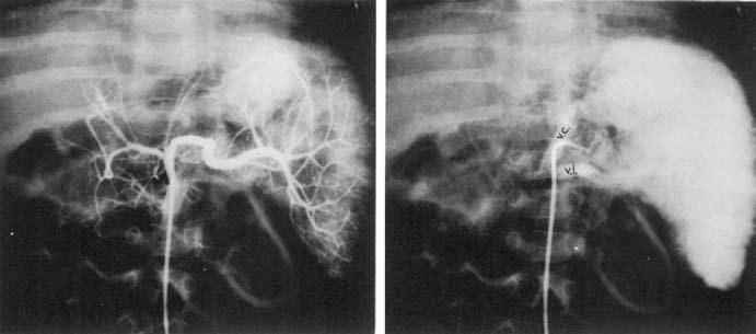 Selektívna angiografia cez a. lienalis. A – normálna a. lienalis, zväčšená slezina, B – venózna fáza, zjavné stop vo VL, odvodný tok pozdľž fundu žalúdka, VC – koronárna véna [17].  Fig. 8. Selective angiography through splenic artery. A – normal splenic artery, enlarged spleen, B – venous phase, evident stop in VL, centrifugal flow along the gastric fundus, VC – coronary vein [17].