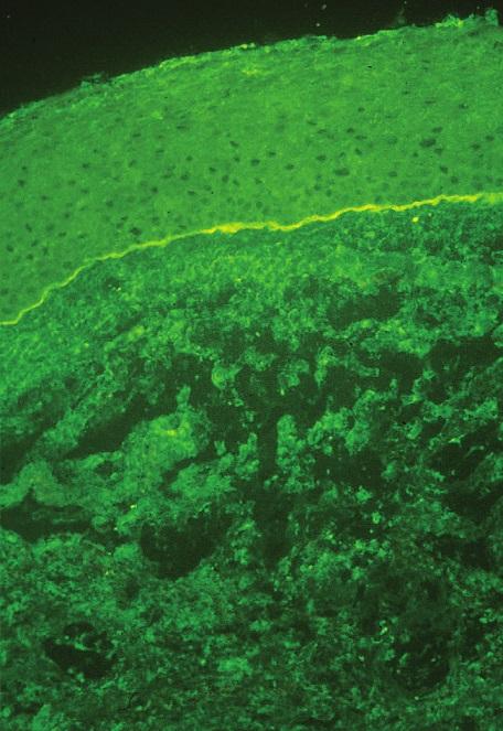 Přímá imunofluorescence