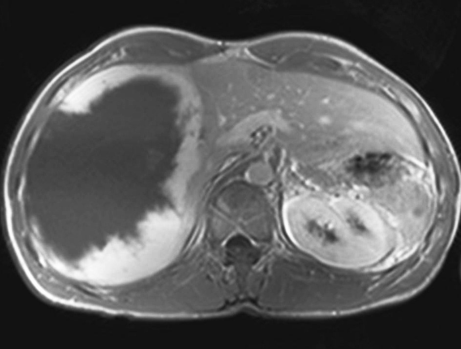 MRI jater – objemný hemangiom pravého laloku jater Pic. 2. MRI of the liver – large hemangioma of the right liver lobe