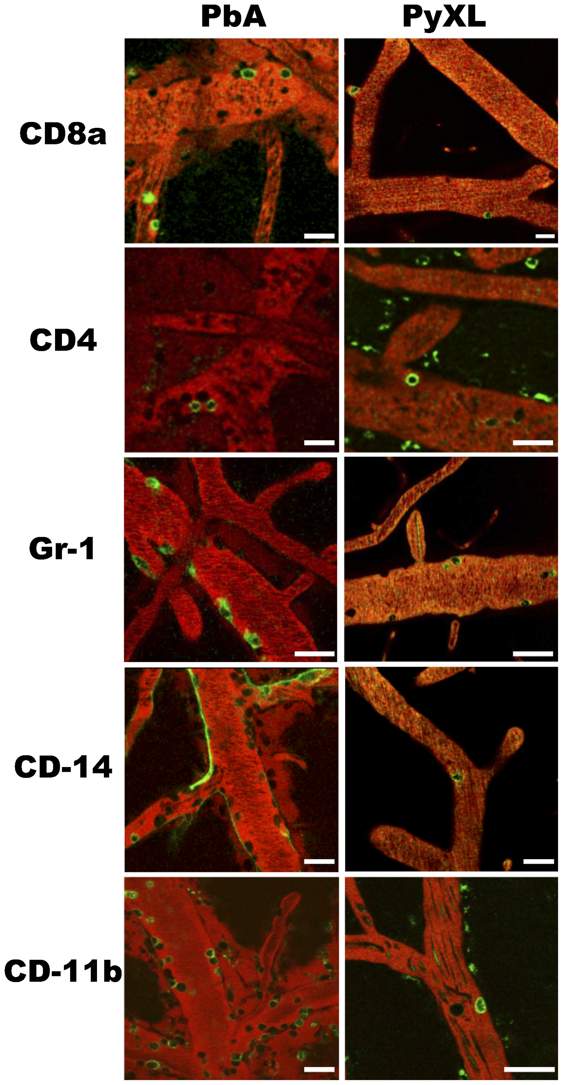 Leukocytes are recruited to cortical postcapillary venules during both ECM and hyperparasitemia.