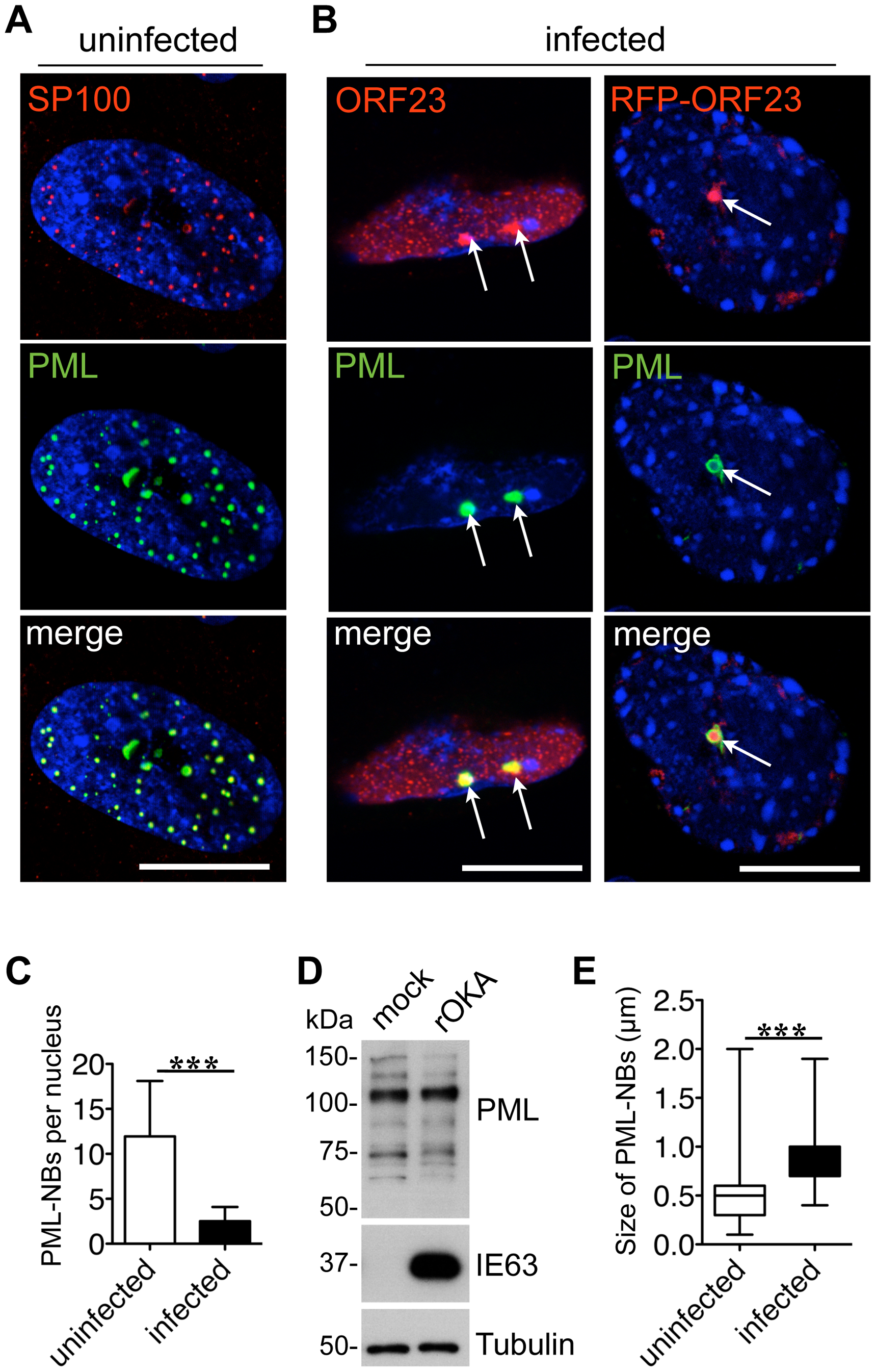 Endogenous PML-NBs colocalize with ORF23 capsid protein in VZV infected cells.