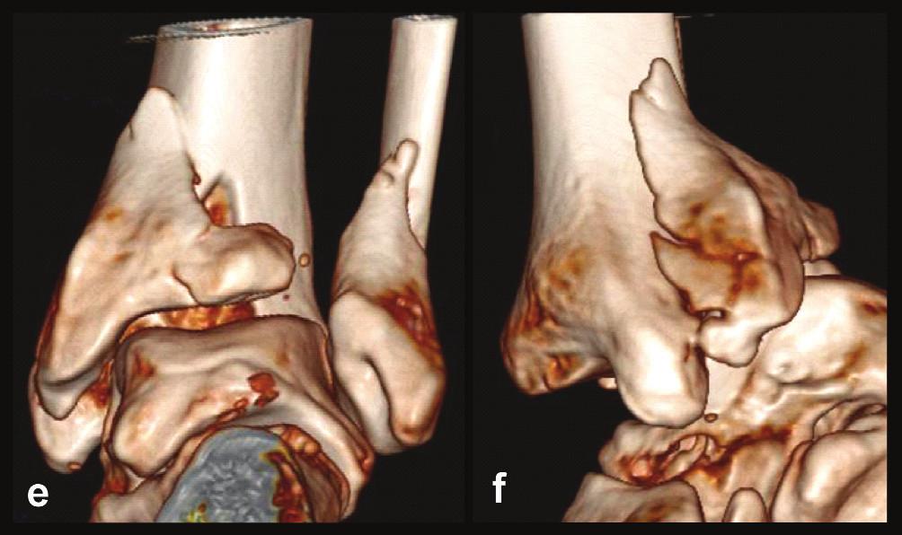Odlomená zadní hrana tibie – Typ 3 (posteromediální) a, b, – rtg snímky ukazující zlomeninu fibuly Weber B, atypickou zlomeninu vnitřního kotníku se subluxací talu dorzálně, odlomení zadní hrany nesoucí přibližně třetinu kloubní plochy distální tibie, c – transverzální CT řez, d – sagitální CT řez, e – 3D CT rekonstrukce, dorzální pohled, f – 3D CT rekonstrukce, mediální pohled. Z rekonstrukcí je patrné, že je odlomena zadní hrana včetně zadního kolikulu mediálního kotníku nesoucího sulcus malleolaris.