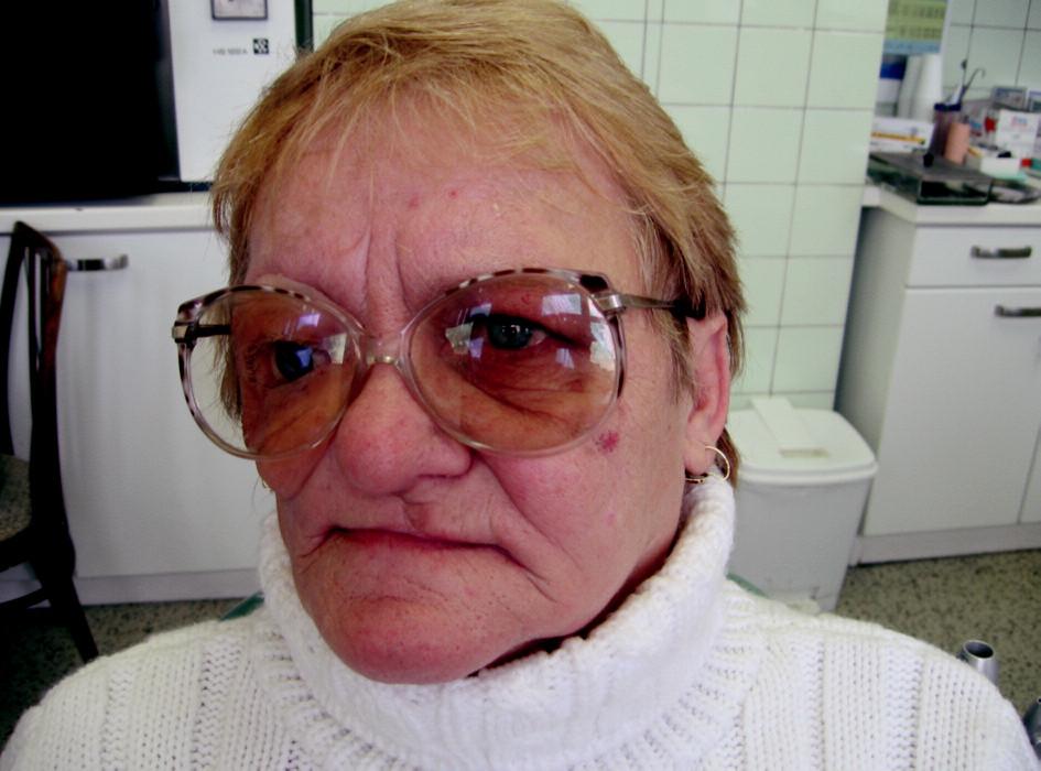Obličejová epitéza kosmeticky doladěná brýlemi.