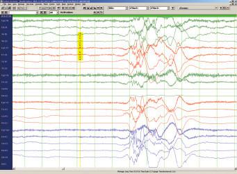 Obr. 1b. Ohtaharův syndrom, 2měs., supression burst vzorec.