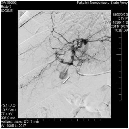 AG – šipka ukazuje vak plnícího se pseudoaneuryzmatu. Jsou patrny i kovové klipy po cholecystektomii.