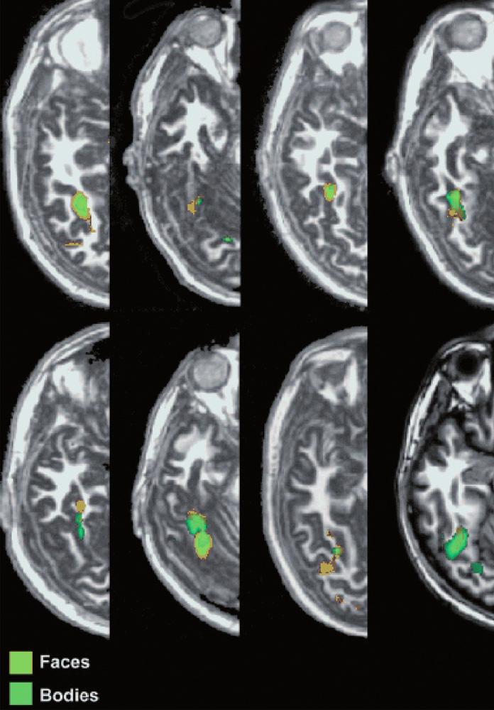 Extrastriátová oblast pro tělo (EBA, extrastriatal body area) v gyrus fusiformis selektivně zpracovává tvary lidského těla bez tváře (17). Legenda: Oranžová barva: tváře vs. nástroje. Zelená barva: těla vs. nástroje. Faces – tváře Bodies – těla