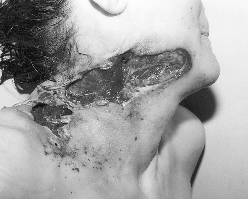 Vražda brokovnicí (ráž 12 x 70) – ostřel pravé strany krku při střelbě ze vzdálenosti 2 metrů