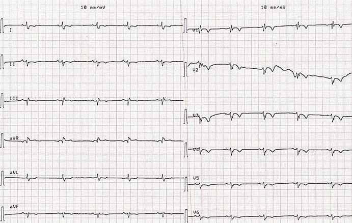 Elektrokardiogram s blokádou pravého Tawarovho ramienka a s abnormalitami reporalizačnej fázy ST-T v oblasti prednej steny (4. deň po preklade z chirurgickej kliniky).