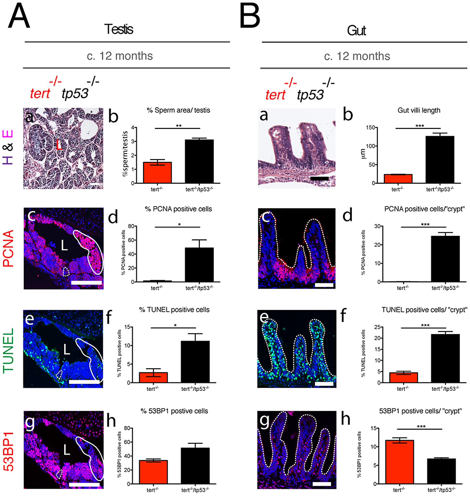 Elimination of <i>tp53</i> function partially rescues <i>tert<sup>−/−</sup></i> degeneration in proliferative tissues.