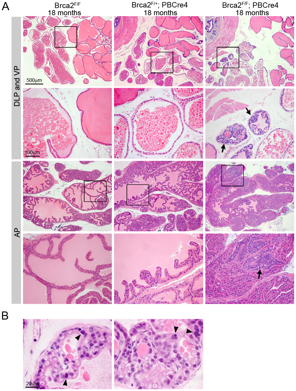 Deletion of <i>Brca2</i> from prostate epithelia results in hyperplasia and LG PIN.