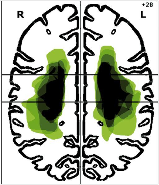 Lokalizace mozkových infarktů na úrovni z-souřadnice +28 mm Talairachova atlasu.