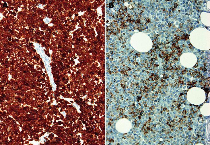 A: Difúzní silná jaderná i cytoplazmatická pozitivita S100 proteinu. B: Ložisková, jemně granulární cytoplazmatická pozitivita antigenu HMB45 (imunohistochemie, 200x).