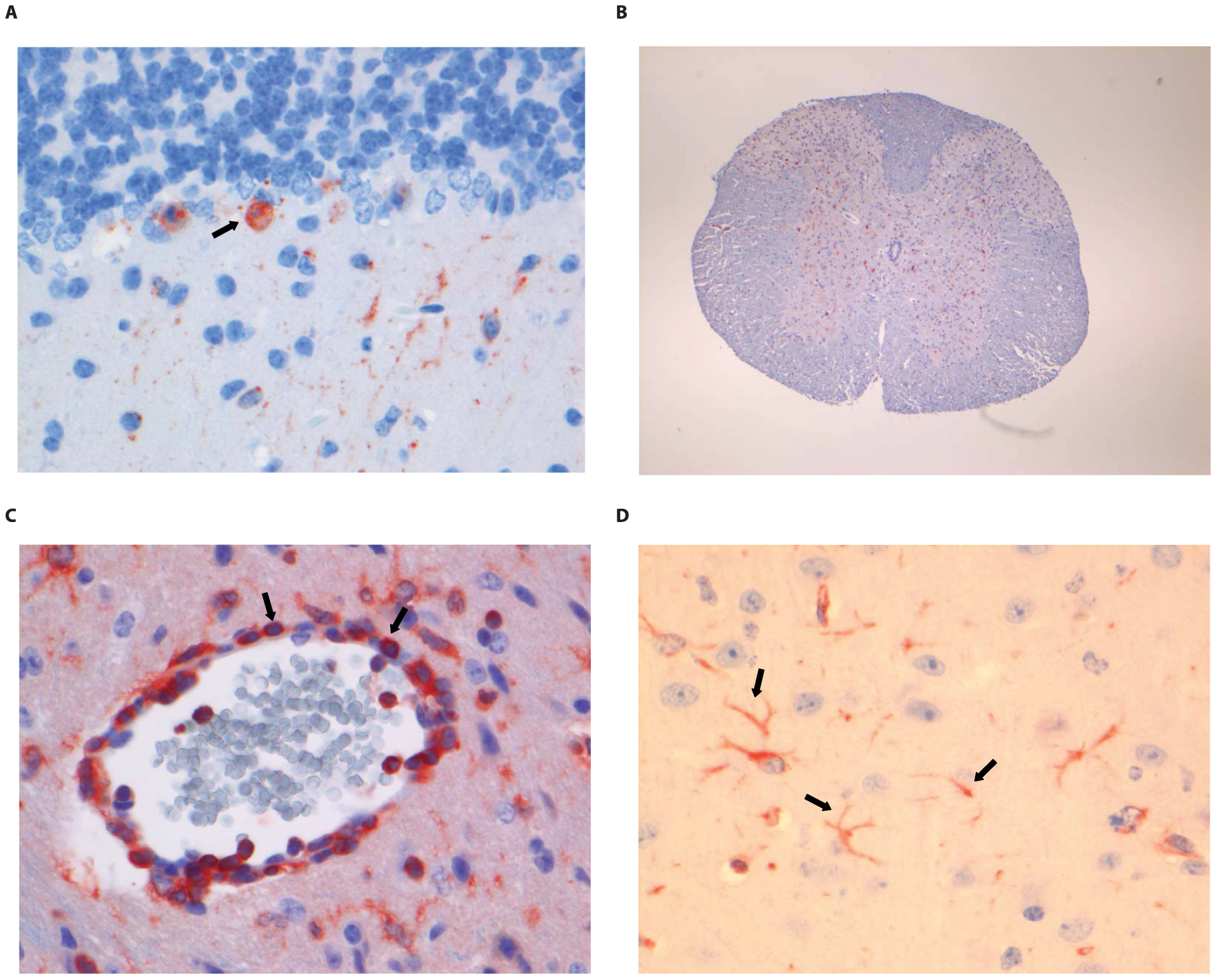 Histopathology of 8-week old BALB/c mice infected i.m. with 10<sup>6</sup> TCID<sub>50</sub> of RABV-PV.