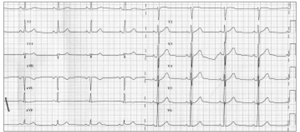 Po aplikaci NTG s.l. ustupuje EKG obraz elevací ST i komorová tachykardie.