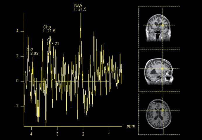 MR spektroskopie u pacienta s NPH. Metoda umožní analýzu koncentrace metabolitů v dané oblasti zájmu. V tomto případě přední raménko capsula interna. (NAA – N-acetylaspartát, Cho – cholin, Cr – kreatinin).