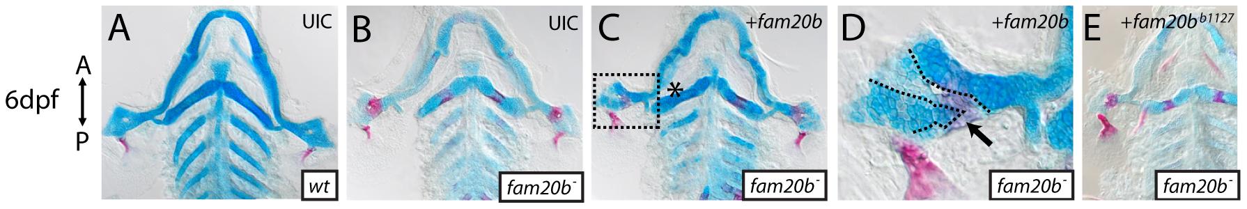 Wild-type <i>fam20b</i> expression rescues the <i>fam20b<sup>b1127</sup></i> mutant phenotype.