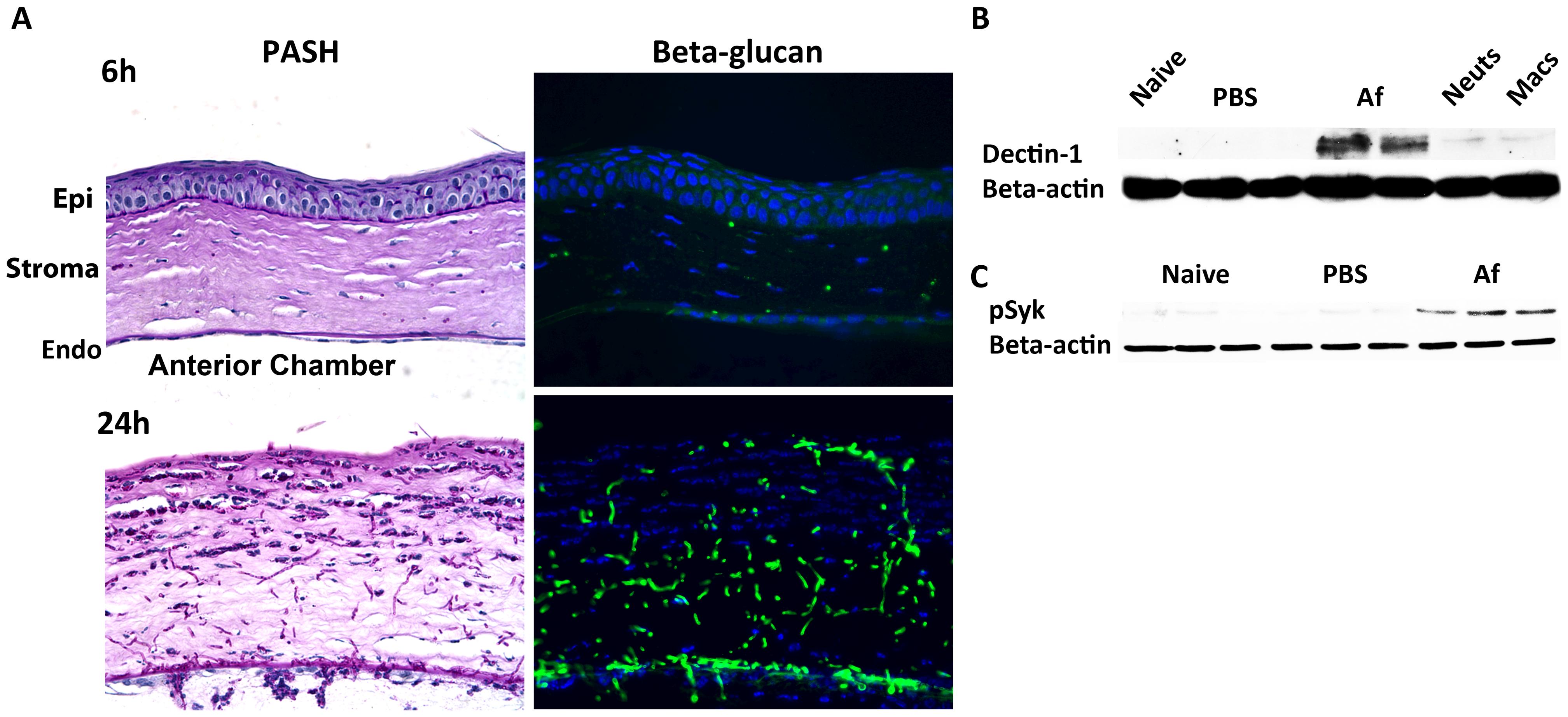 β-glucan expression and Dectin-1 signaling in <i>A. fumigatus</i> keratitis.