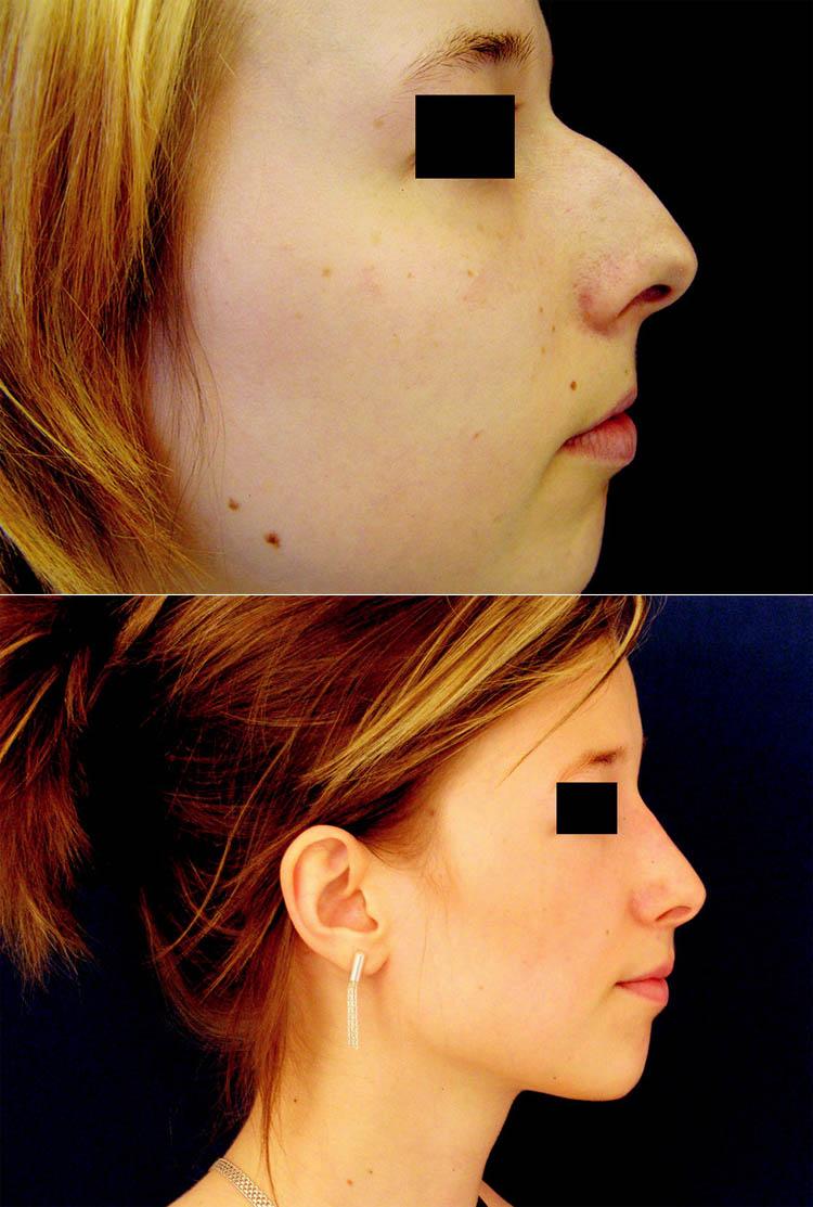 Redukce tkání u profiloplastik. a) snížení septa o 5 mm; b) mohutné snesení hrbolu; c) nepatrné snížení kořene; d) středně velká redukce alárních chrupavek; e) bez zkrácení septa