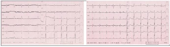 Vľavo: EKG z roku 2003, pravotyp, známky preťaženia pravého srdca, vpravo: EKG z roku 2005, oproti nálezu z roku 2003 v hrudných zvodoch progresia hypertrofi e a preťaženia pravej komory srdca.