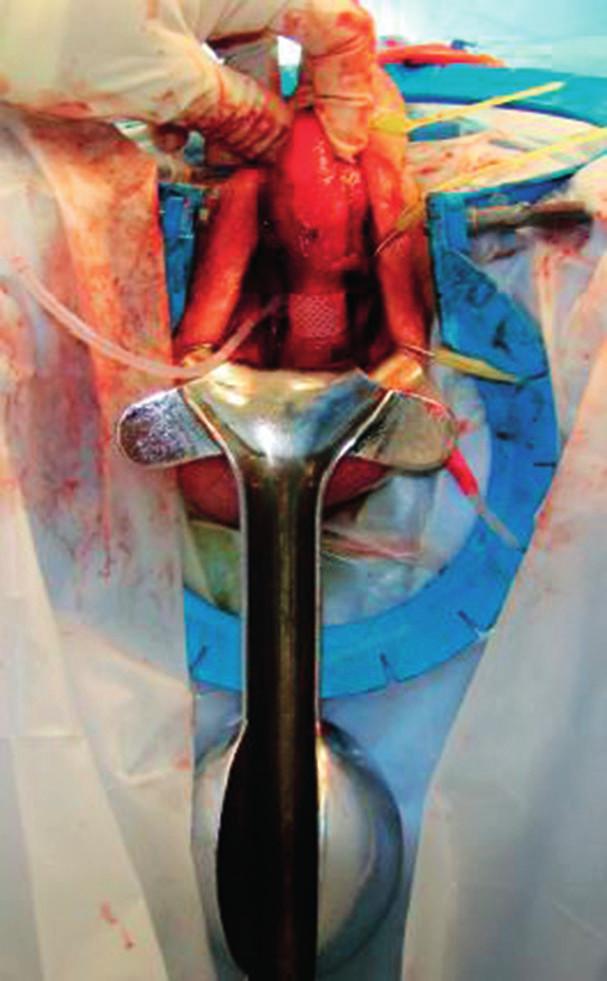 Peroperační fotografie: umístění manžety umělého svěrače uretry na bulbární uretře