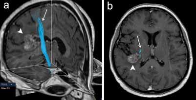DTI vyšetření u pacientky s metastázou adenokarcinomu vpravo temporálně (plná šipka) s rekonstrukcí kortikospinální dráhy (šipka). a) Přehledný 3D pohled. b) Projekce do axiální roviny dobře znázorňuje těsný vztah dráhy k mediálnímu okraji tumoru.