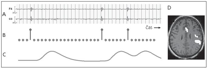 Zpracování fMR dat pomocí výbojů nalezených v interiktálním EEG záznamu. a) interiktální EEG s výboji, b) stimulační funkce vytvořená na základě výbojů, c) GLM regresor vytvořený jako konvoluce stimulační funkce a HRF, d) výsledná statistická mapa znázorňující místa hemodynamických změn souvisejících s výboji (signifikantní efekt regresoru ve fMR datech).