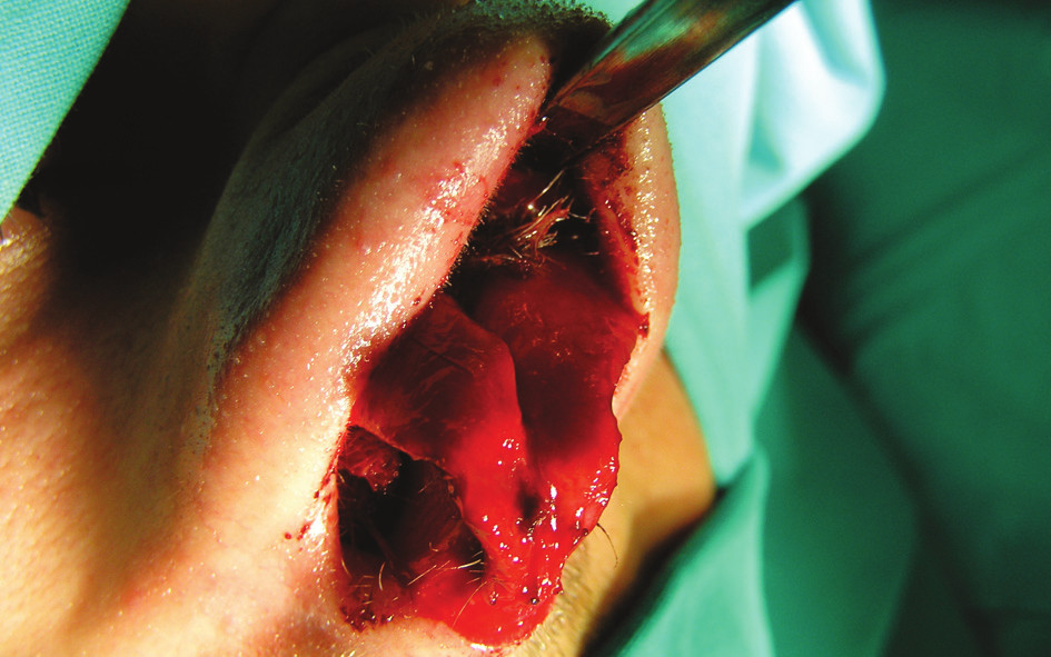 Fig. 6. Excision of the nasal dermoid via the open approach in our second patient; notice the hairs inside the fistula