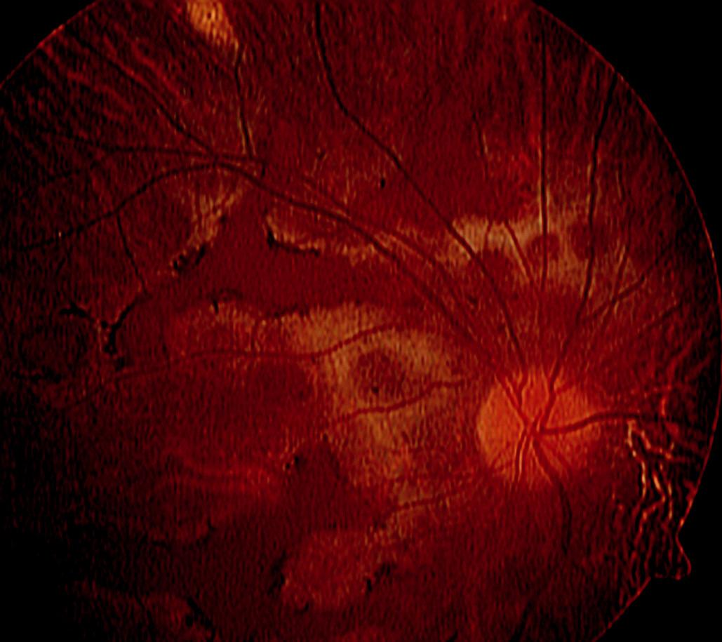 Systémový non-Hodgkinský lymfom u 32letého pacienta, kde tumorózní infiltrace choroidey může být zaměněna za obraz serpiginózní choroidopatie