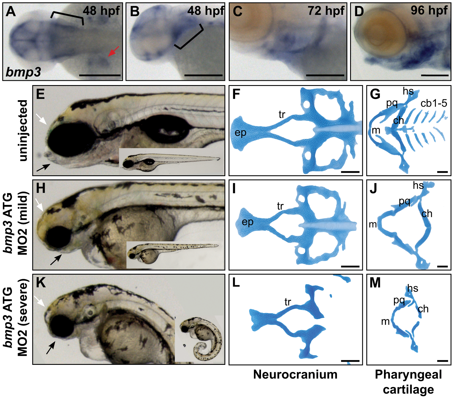Zebrafish cranioskeletal development requires Bmp3 function.